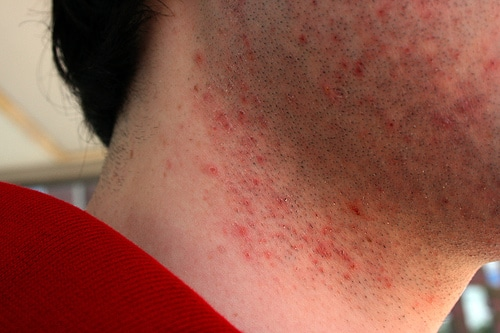 razor burn on neck up close photo
