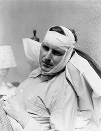 Injured vintage man with bandaged head lying on bed.