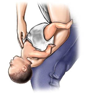 how to perform heimlich maneuver on baby infant illustration