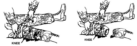 How to apply tourniquet wrap limb with rope belt illustration.