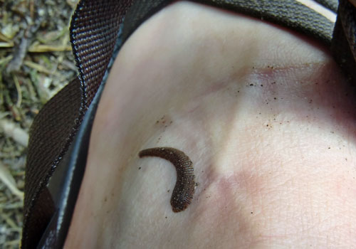 leech on skin from canoeing bwca minnesota