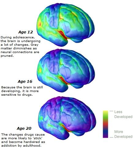gray matter brain comparison ages 12 16 20