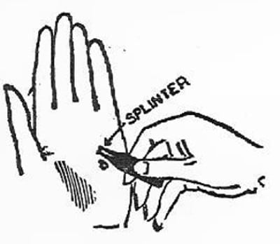 boy scouts vintage illustration tweezers splinter