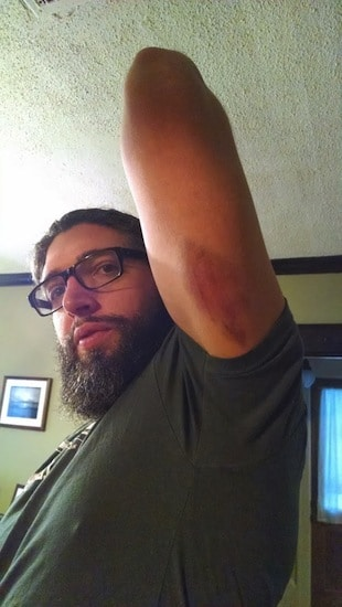 Man with bruise on arm from home garage fight club.