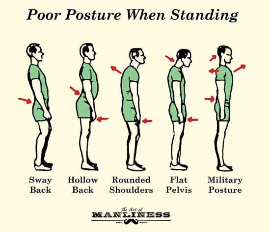 poor posture when standing illustration diagram