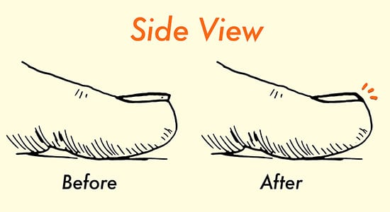 how to properly cut toenails illustration diagram