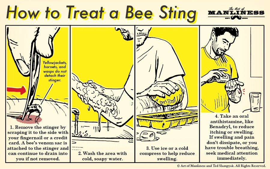 how to treat a bee sting illustration diagram