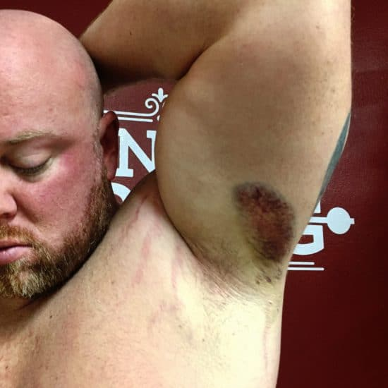Bruise from torn lat muscle
