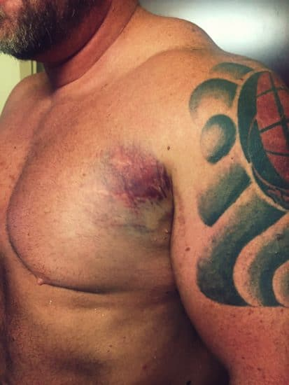 pectoral chest muscle tear bruising in armpit
