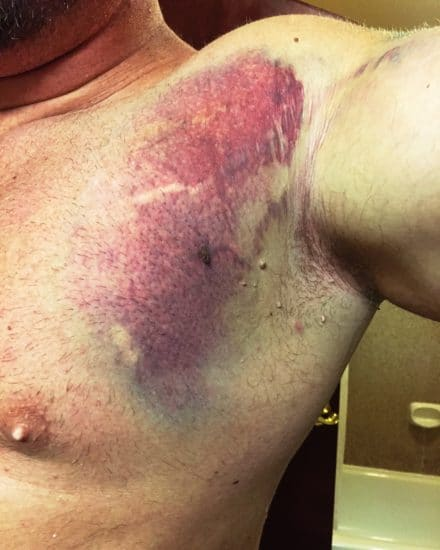 torn pec pectoral muscle bruise on chest and armpit