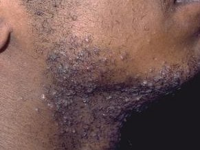 Razor bumps on black American black men's face after shaving.