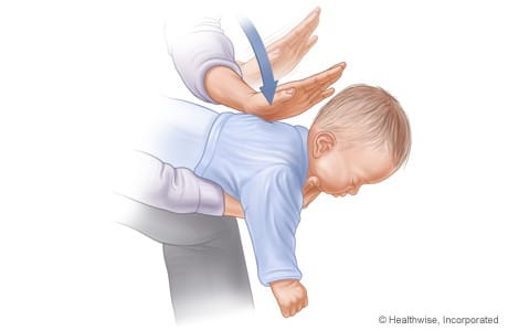 how to perform heimlich maneuver on baby infant