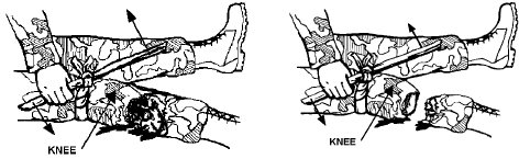 how to apply tourniquet illustration twist torsion device