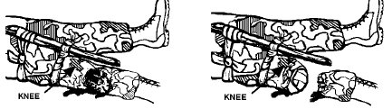 Securing the tourniquet on knee illustration.