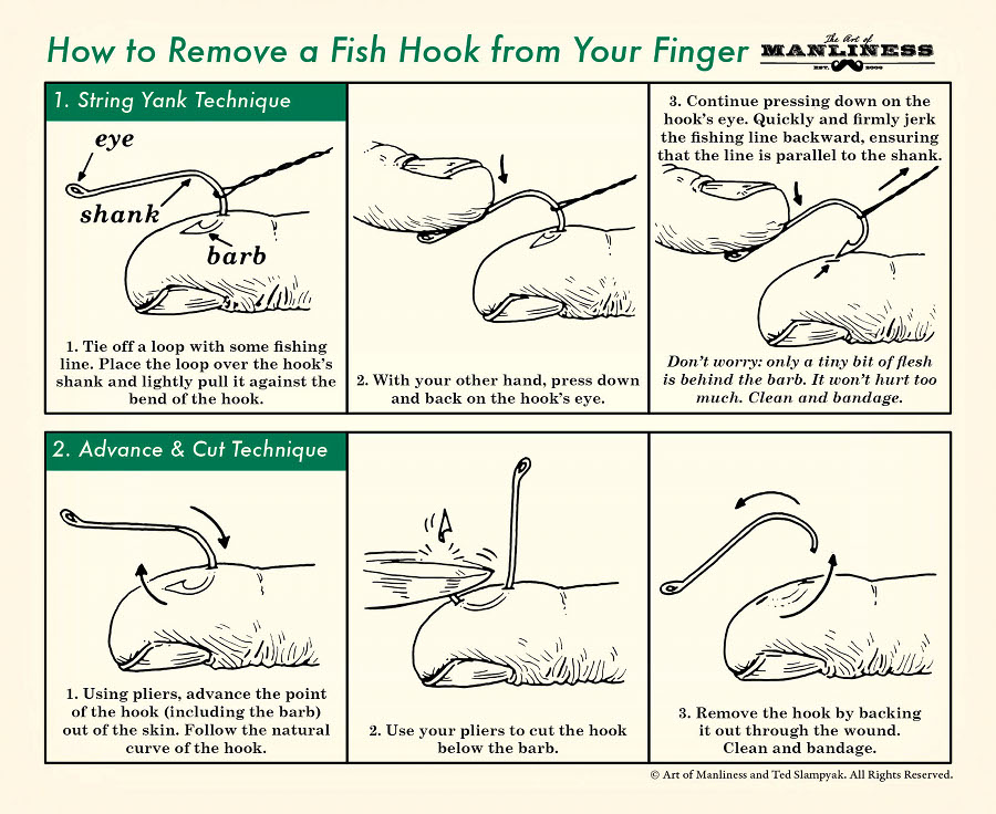 String Yank Technique  Frame 1: Tie off a loop with some fishing line. Place the loop over the hook's shank and lightly pull it against the bend of the hook.   Frame 2: With your other hand, press down and back on the hook's eye.   Frame 3: Continue pressing down on the hook's eye. Quickly and firmly jerk the fishing line backward, ensuring that the line is parallel to the shank. Don't worry: only a tiny bit of flesh is behind the barb. It won't hurt too much. Clean and bandage.  Advance & Cut Technique  Frame 1: Using pliers, advance the point of the hook (including the barb) out of the skin. Follow the natural curve of the hook.  Frame 2: Use your pliers to cut the hook below the barb.  Frame 3: Remove the hook by backing it out through the wound. Clean and bandage.