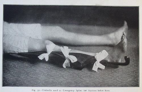 Vintage man with broken leg and splinting it with umbrella.