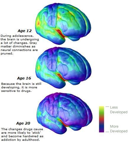 gray matter brain comparison ages 12 16 20