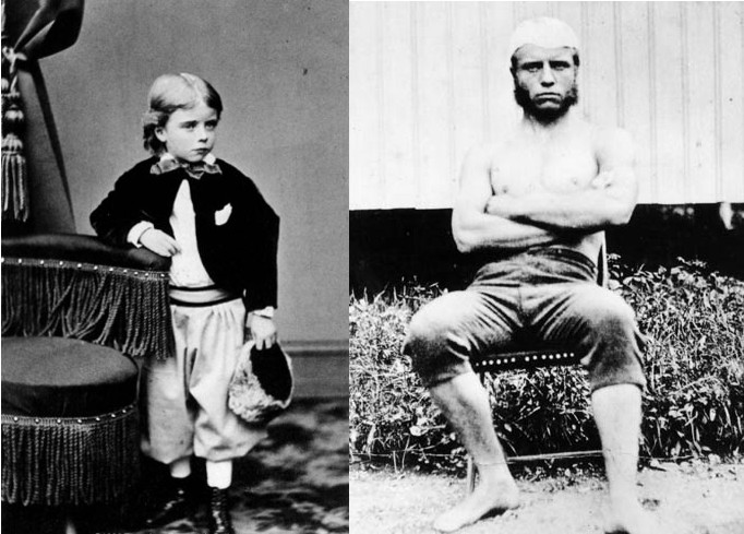 teddy theodore roosevelt frail young boy strong young man