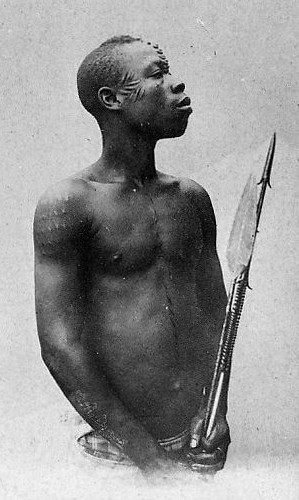 African boy with scars on face body.