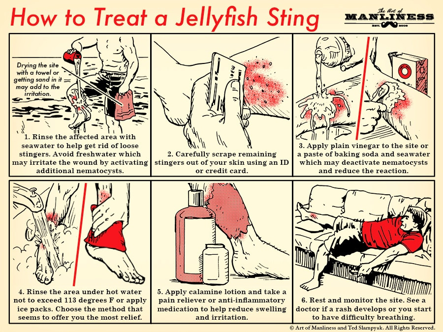 How to treat a jellyfish sting illustration.