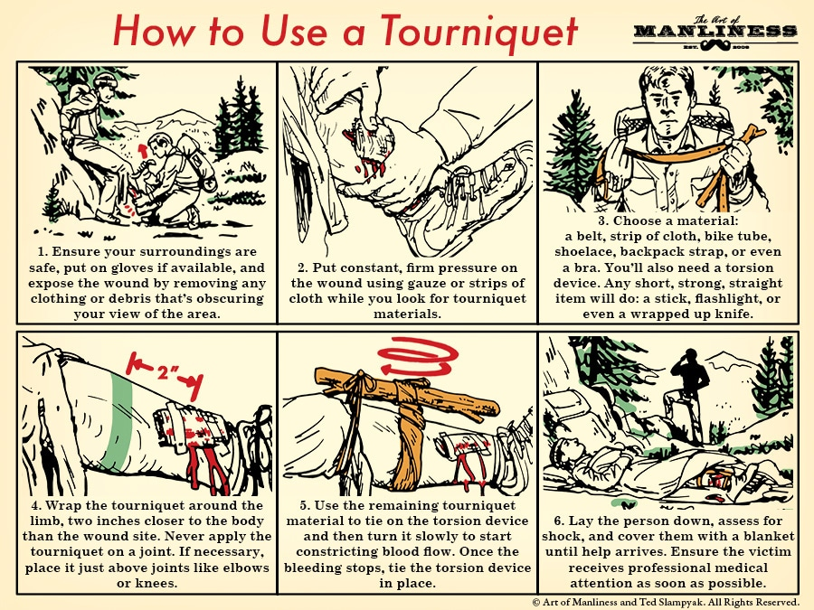 How to use a tourniquet illustration.