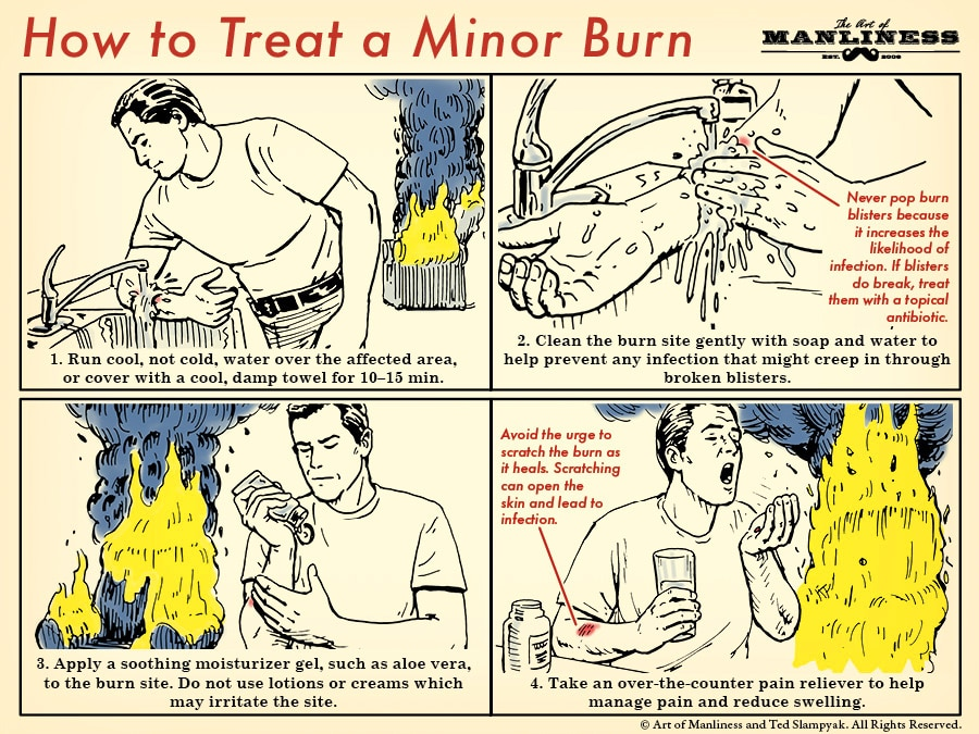 how to treat a minor burn illustration