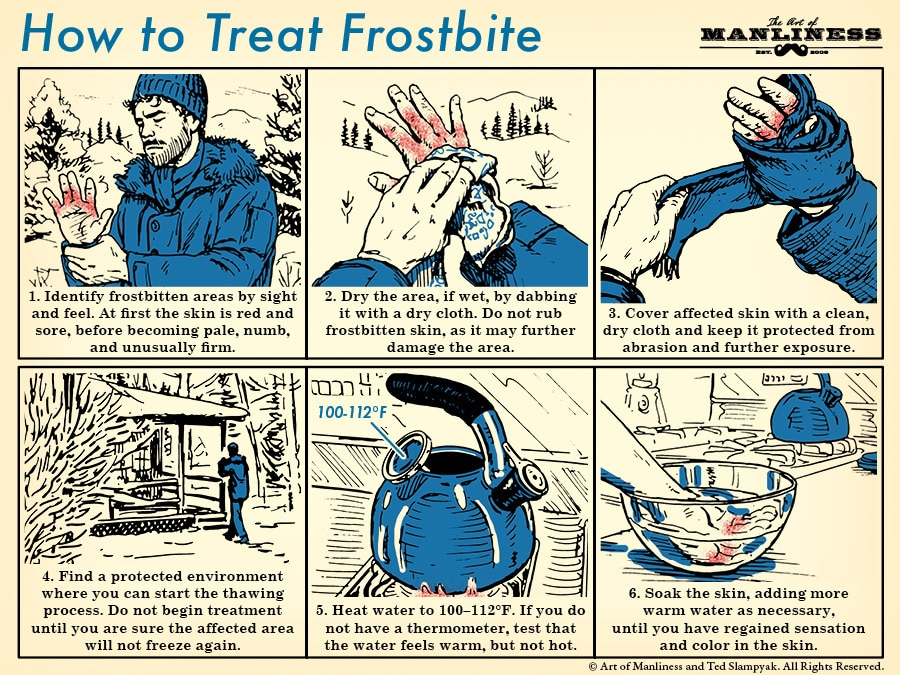 how to treat frostbite illustration diagram