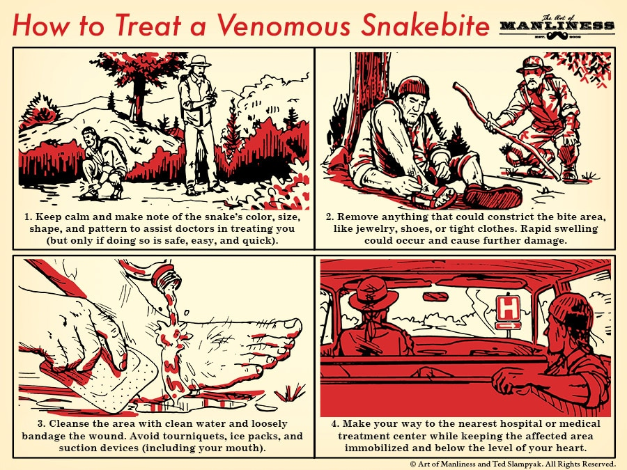 treating a venomous snakebite illustration how-to diagram