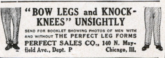 vintage cure for bow legs newspaper ad advertisement