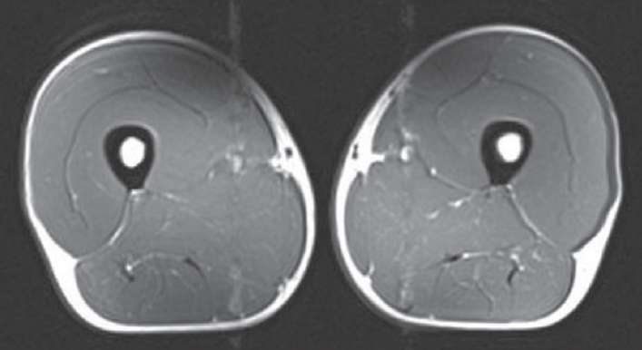 MRI scan of forty Year old triathlete.