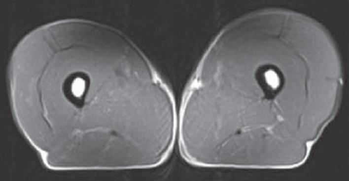 MRI scan of 70-Year-Old Triathlete.