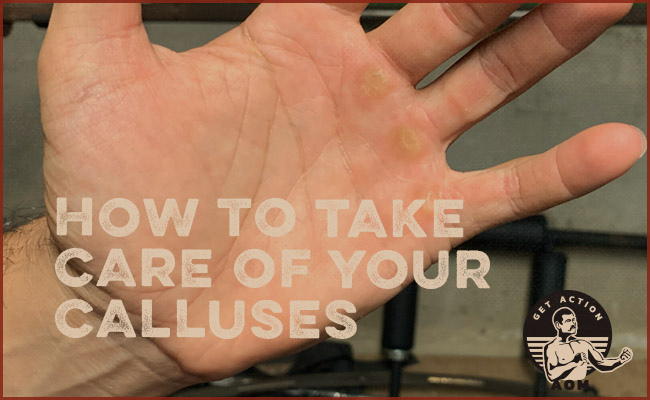 Taking care of calluses.